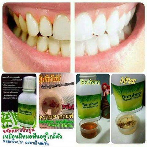 น้ำยาบ้วนปากแบมบู Bamboo mouthwash ของแท้100% สินค้ามีพร้อมส่ง
