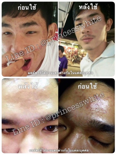Before/After ผลิตภัณฑ์รักษาสิว Princess White